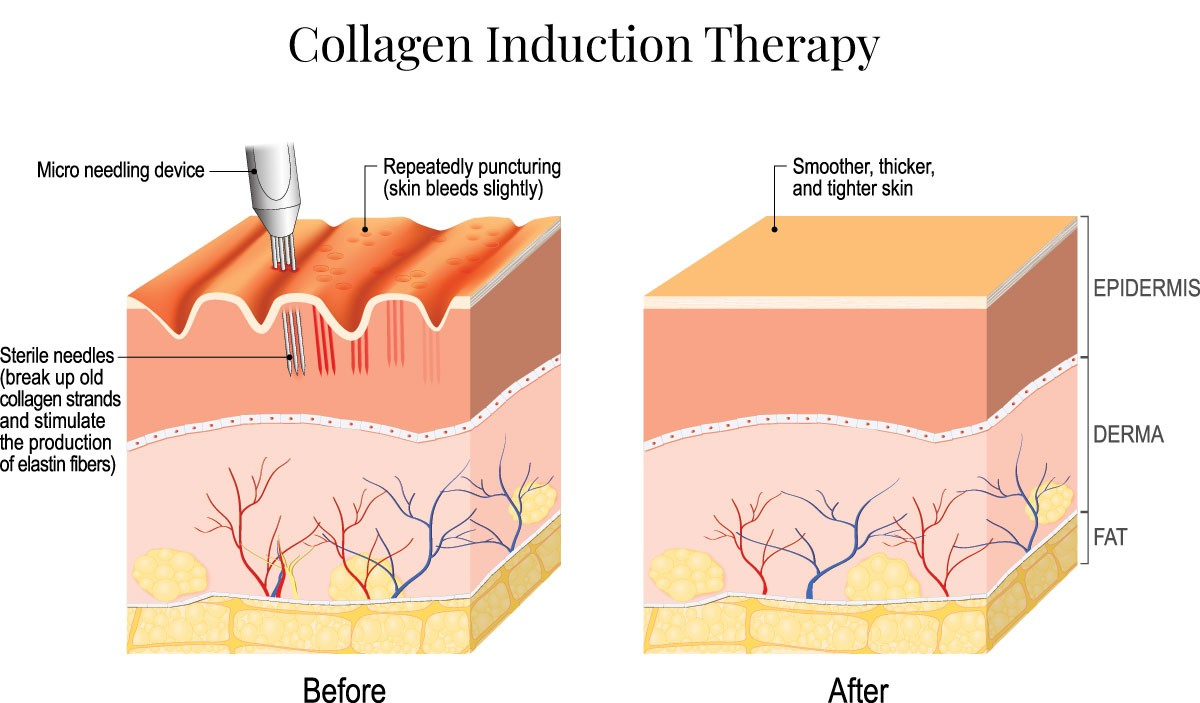 Collagen-Induction-Therapy